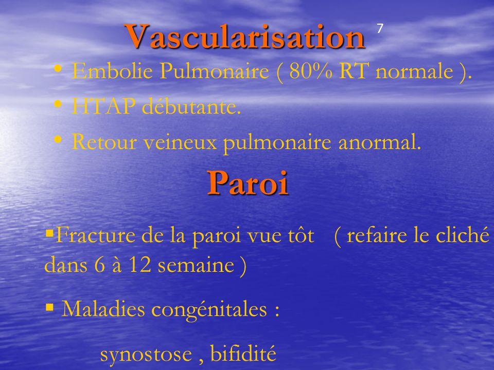 Vascularisation Vascularisation Embolie Pulmonaire ( 80% RT normale ). HTAP débutante. Retour veineux pulmonaire anormal. Paroi  Fracture de la paroi