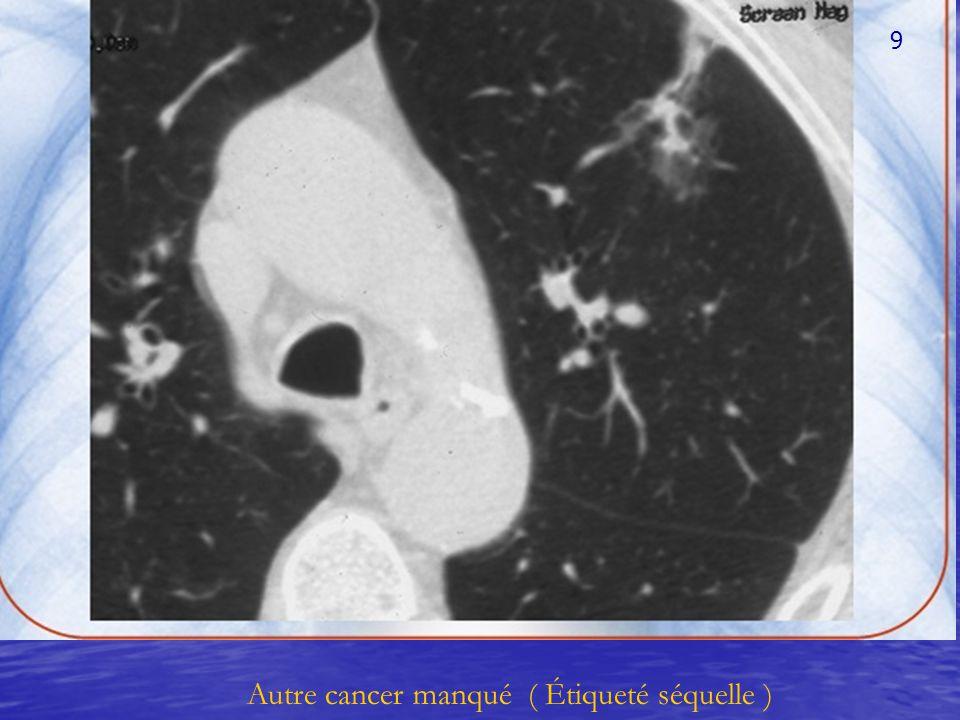 Autre cancer manqué ( Étiqueté séquelle ) 9