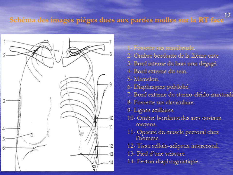 1- Fossette sus manibruale. 2- Ombre bordante de la 2ième cote 3- Bord interne du bras non dégagé. 4- Bord externe du sein. 5- Mamelon. 6- Diaphragme