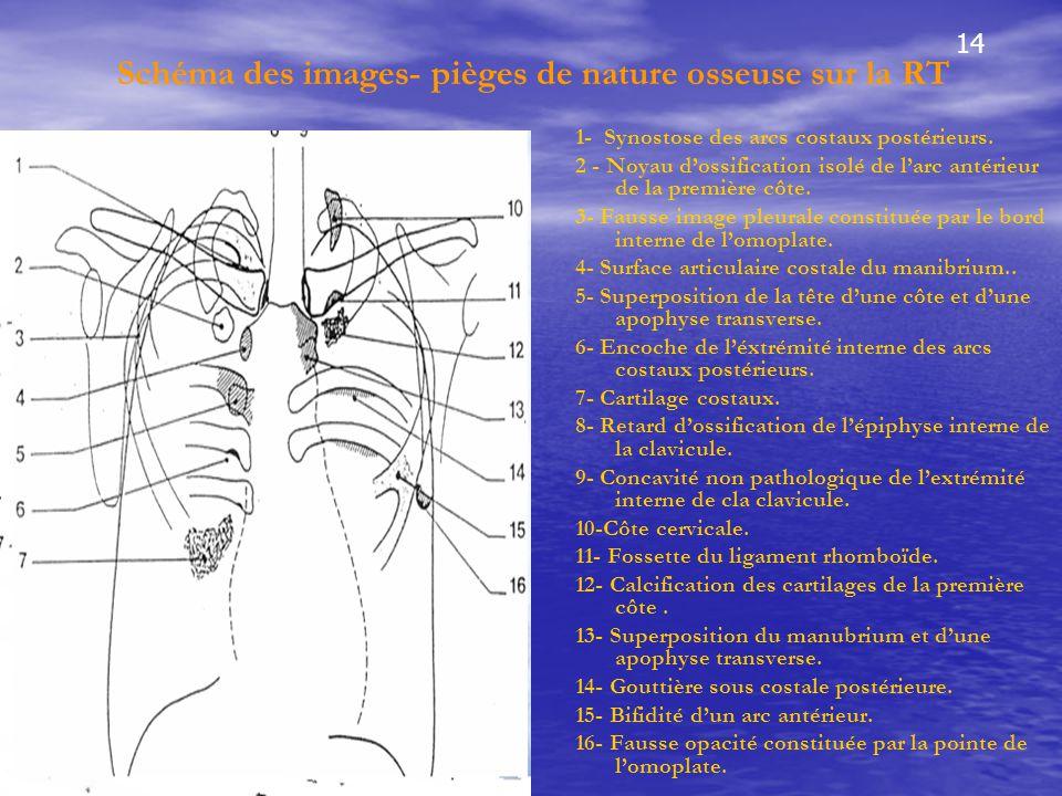 Schéma des images- pièges de nature osseuse sur la RT 1- Synostose des arcs costaux postérieurs. 2 - Noyau d'ossification isolé de l'arc antérieur de
