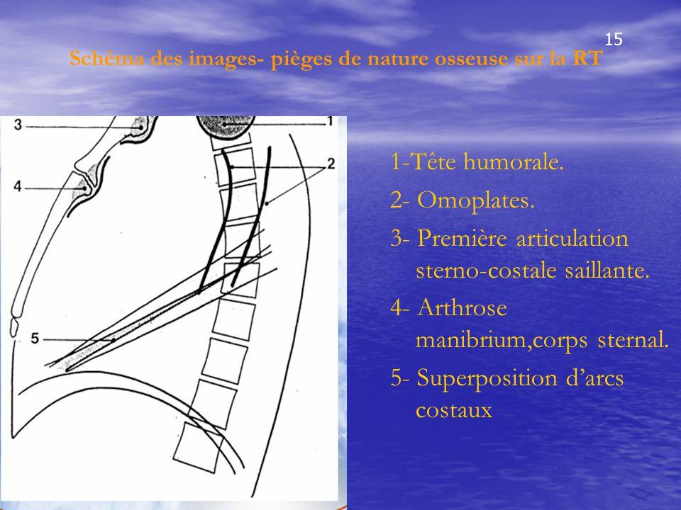 Schéma des images- pièges de nature osseuse sur la RT 1-Tête humorale. 2- Omoplates. 3- Première articulation sterno-costale saillante. 4- Arthrose ma