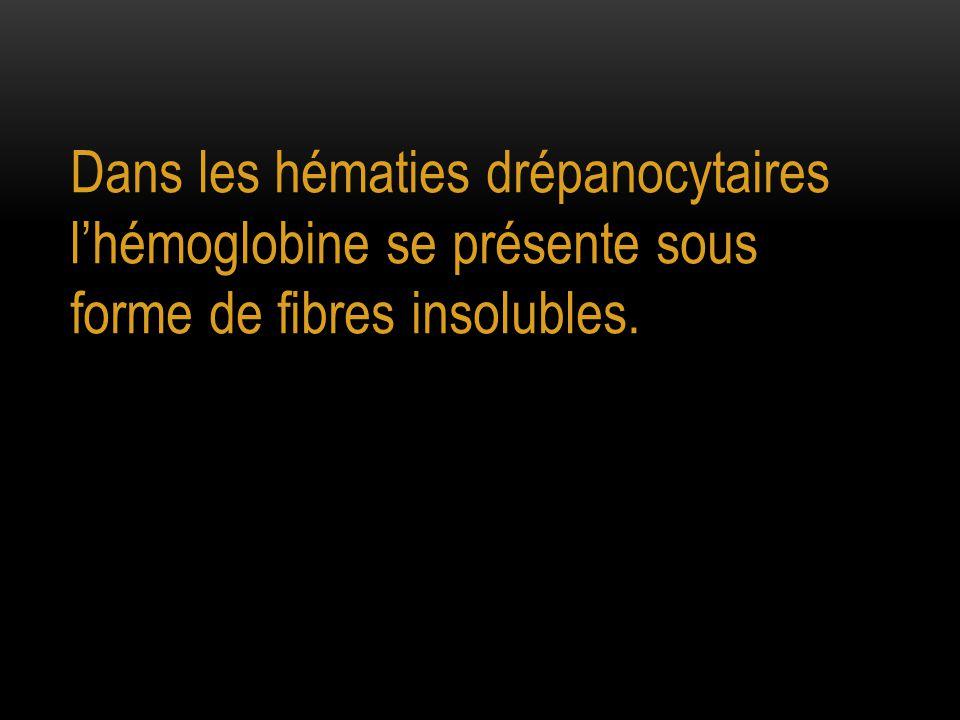 Dans les hématies drépanocytaires l'hémoglobine se présente sous forme de fibres insolubles.