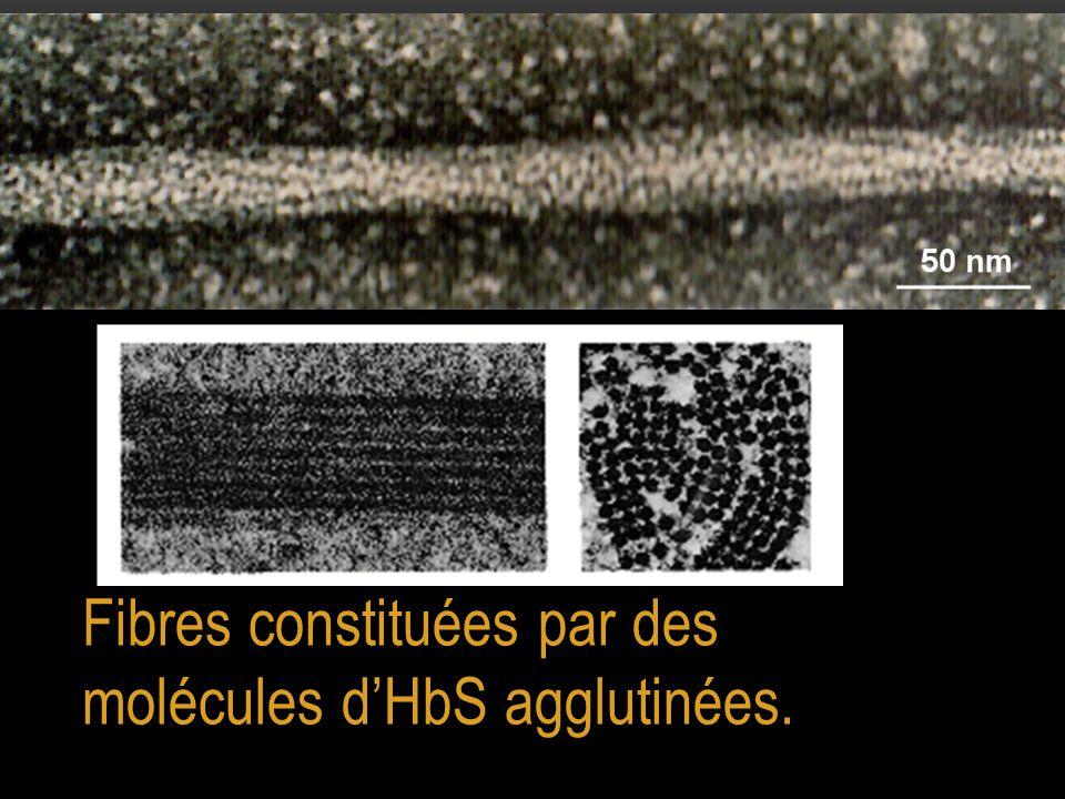 Fibres constituées par des molécules d'HbS agglutinées.