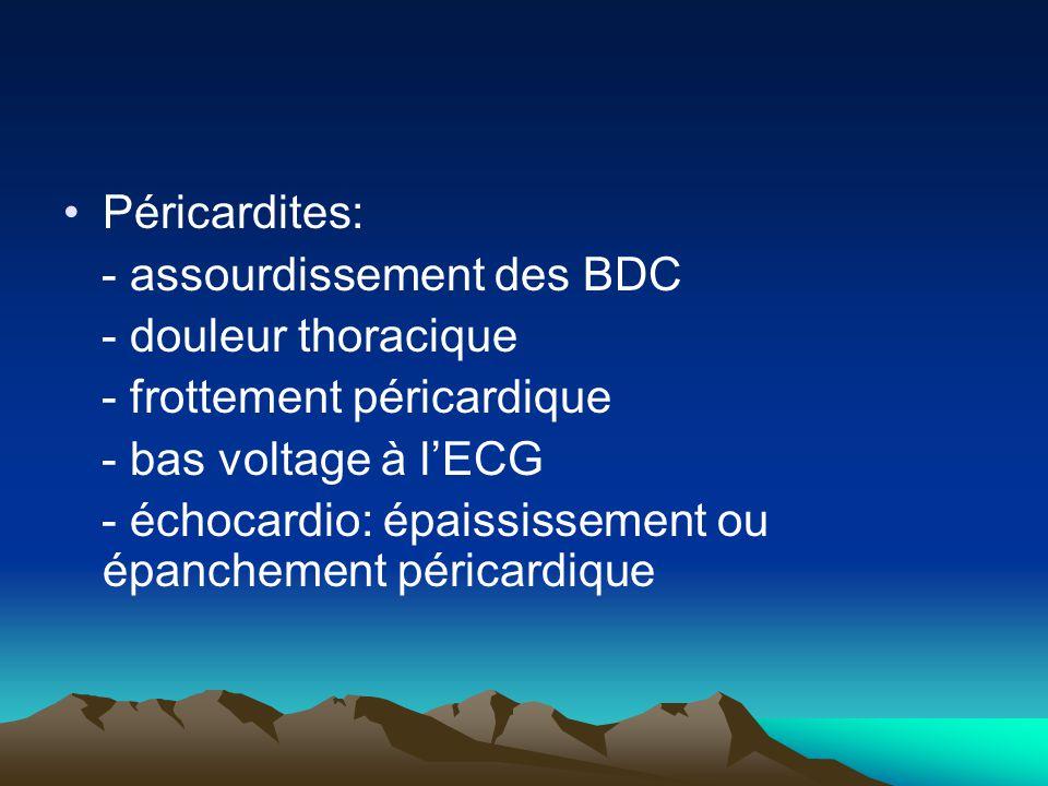 Péricardites: - assourdissement des BDC - douleur thoracique - frottement péricardique - bas voltage à l'ECG - échocardio: épaississement ou épancheme