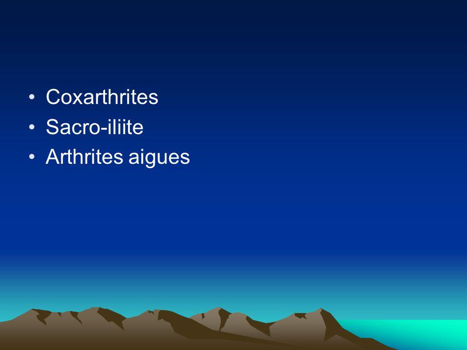 Coxarthrites Sacro-iliite Arthrites aigues
