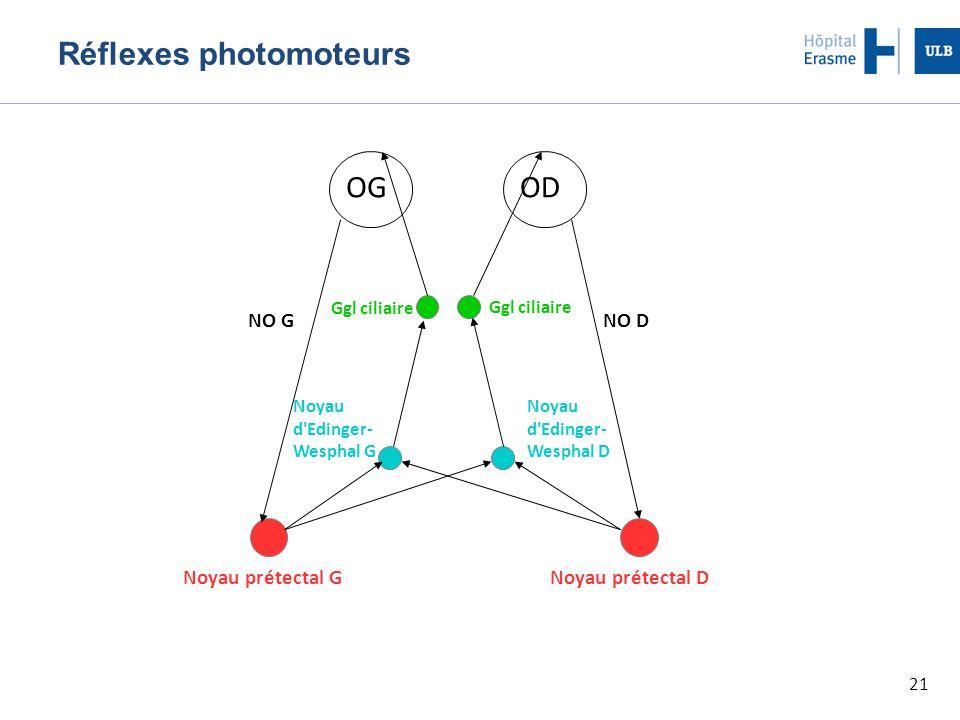 21 Réflexes photomoteurs OGOD Noyau prétectal GNoyau prétectal D Noyau d'Edinger- Wesphal G Noyau d'Edinger- Wesphal D Ggl ciliaire NO DNO G
