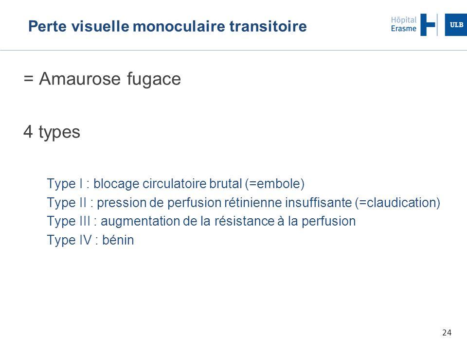 24 Perte visuelle monoculaire transitoire = Amaurose fugace 4 types Type I : blocage circulatoire brutal (=embole) Type II : pression de perfusion rét