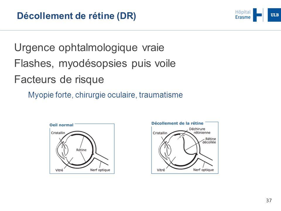 37 Décollement de rétine (DR) Urgence ophtalmologique vraie Flashes, myodésopsies puis voile Facteurs de risque Myopie forte, chirurgie oculaire, traumatisme