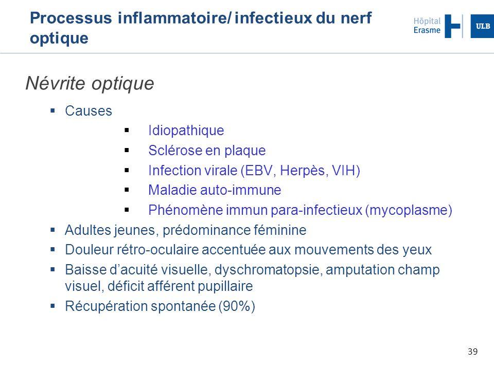 39 Processus inflammatoire/ infectieux du nerf optique Névrite optique  Causes  Idiopathique  Sclérose en plaque  Infection virale (EBV, Herpès, V