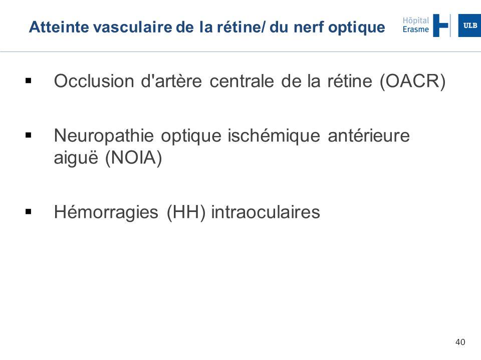 40 Atteinte vasculaire de la rétine/ du nerf optique  Occlusion d artère centrale de la rétine (OACR)  Neuropathie optique ischémique antérieure aiguë (NOIA)  Hémorragies (HH) intraoculaires