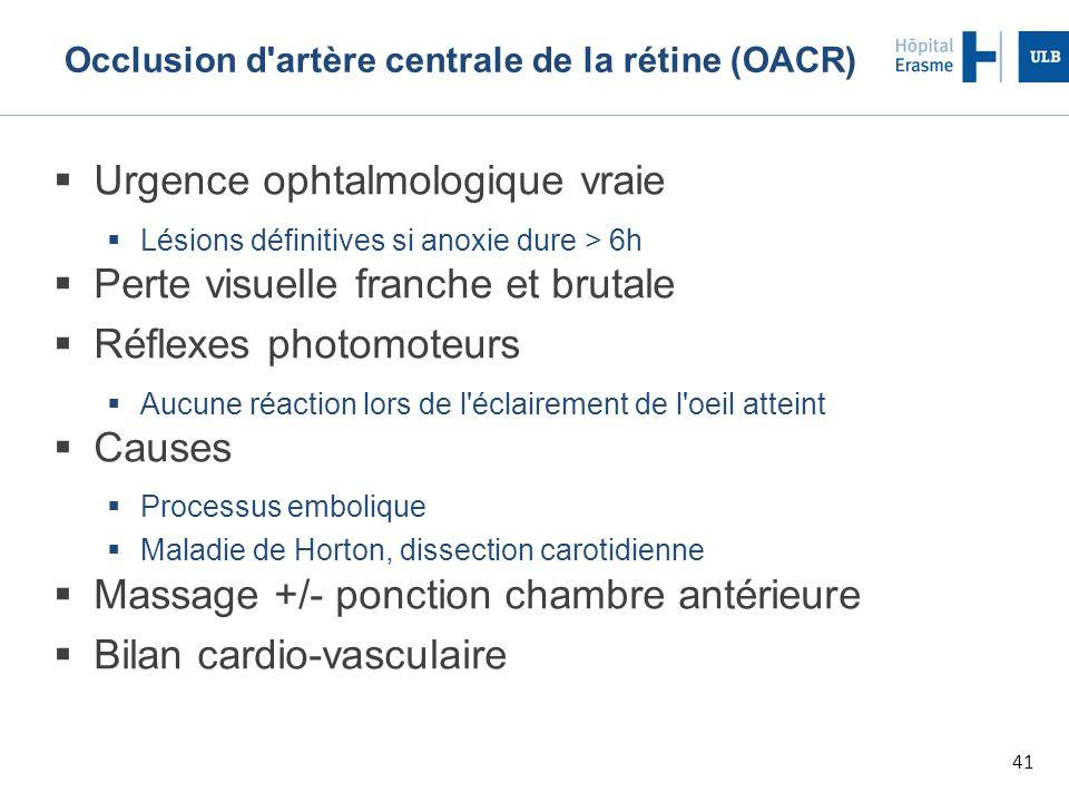 41 Occlusion d artère centrale de la rétine (OACR)  Urgence ophtalmologique vraie  Lésions définitives si anoxie dure > 6h  Perte visuelle franche et brutale  Réflexes photomoteurs  Aucune réaction lors de l éclairement de l oeil atteint  Causes  Processus embolique  Maladie de Horton, dissection carotidienne  Massage +/- ponction chambre antérieure  Bilan cardio-vasculaire