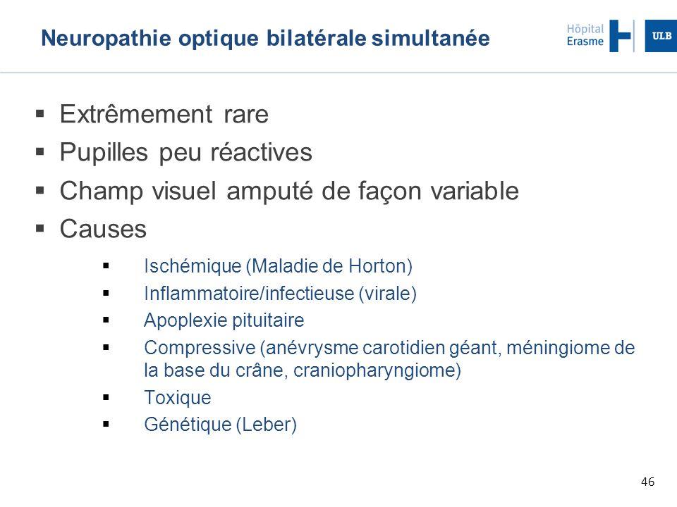 46 Neuropathie optique bilatérale simultanée  Extrêmement rare  Pupilles peu réactives  Champ visuel amputé de façon variable  Causes  Ischémique (Maladie de Horton)  Inflammatoire/infectieuse (virale)  Apoplexie pituitaire  Compressive (anévrysme carotidien géant, méningiome de la base du crâne, craniopharyngiome)  Toxique  Génétique (Leber)