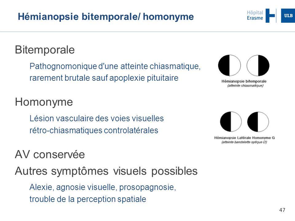 47 Hémianopsie bitemporale/ homonyme Bitemporale Pathognomonique d une atteinte chiasmatique, rarement brutale sauf apoplexie pituitaire Homonyme Lésion vasculaire des voies visuelles rétro-chiasmatiques controlatérales AV conservée Autres symptômes visuels possibles Alexie, agnosie visuelle, prosopagnosie, trouble de la perception spatiale