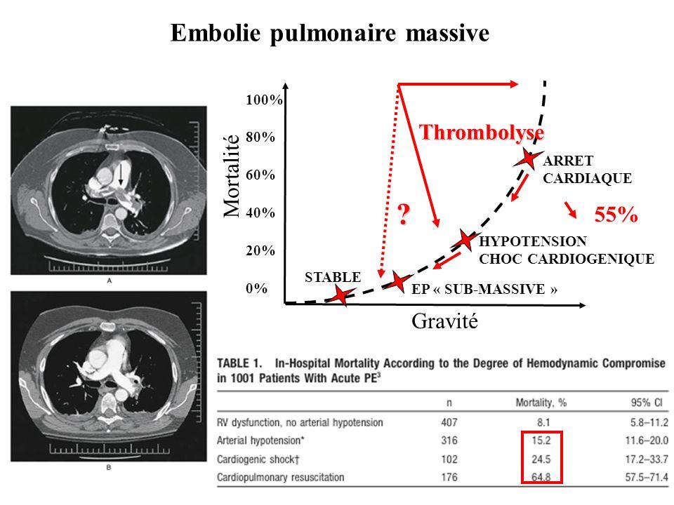 Embolie pulmonaire massive HYPOTENSION CHOC CARDIOGENIQUE 100% 80% 60% 40% 20% 0% EP « SUB-MASSIVE » ARRET CARDIAQUE STABLE Mortalité Gravité ? 55% Th