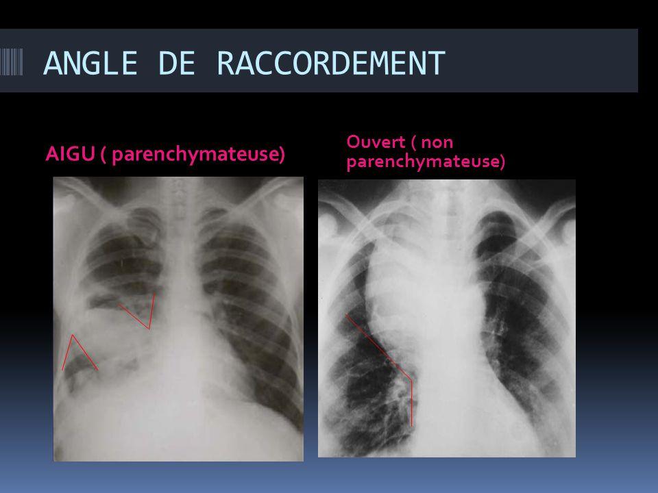ANGLE DE RACCORDEMENT AIGU ( parenchymateuse) Ouvert ( non parenchymateuse)