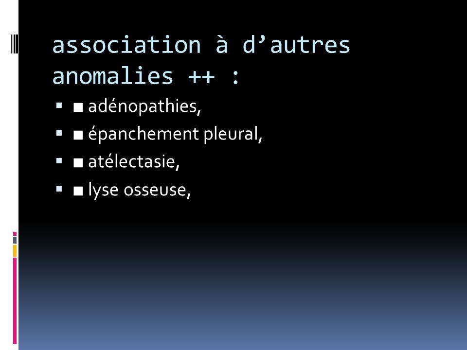 association à d'autres anomalies ++ :  ■ adénopathies,  ■ épanchement pleural,  ■ atélectasie,  ■ lyse osseuse,