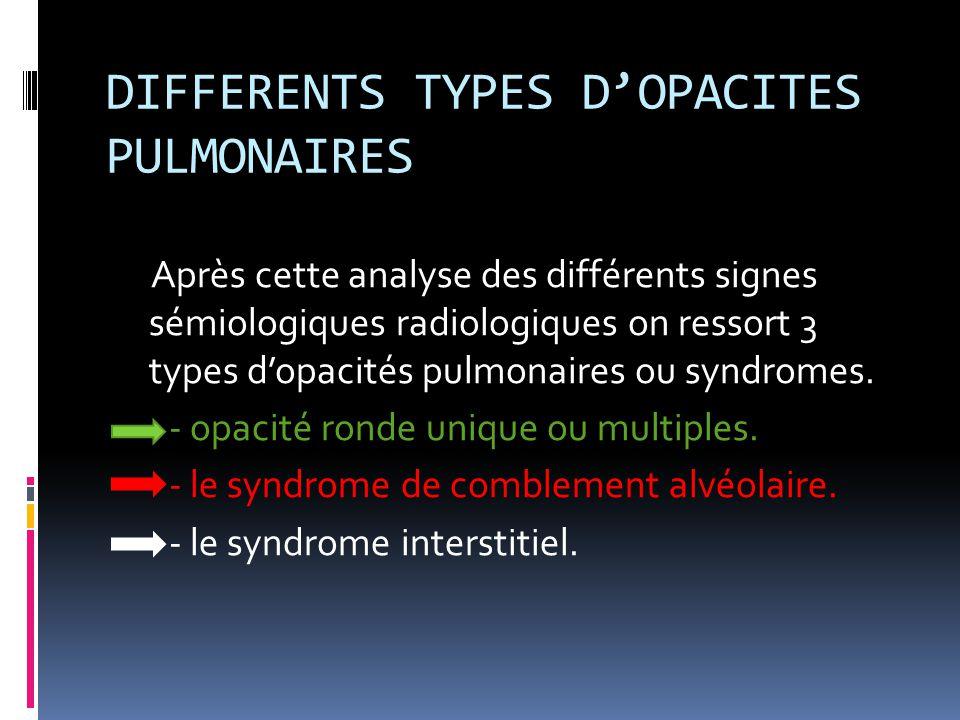 DIFFERENTS TYPES D'OPACITES PULMONAIRES Après cette analyse des différents signes sémiologiques radiologiques on ressort 3 types d'opacités pulmonaire