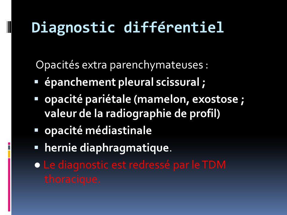 Diagnostic différentiel Opacités extra parenchymateuses :  épanchement pleural scissural ;  opacité pariétale (mamelon, exostose ; valeur de la radi
