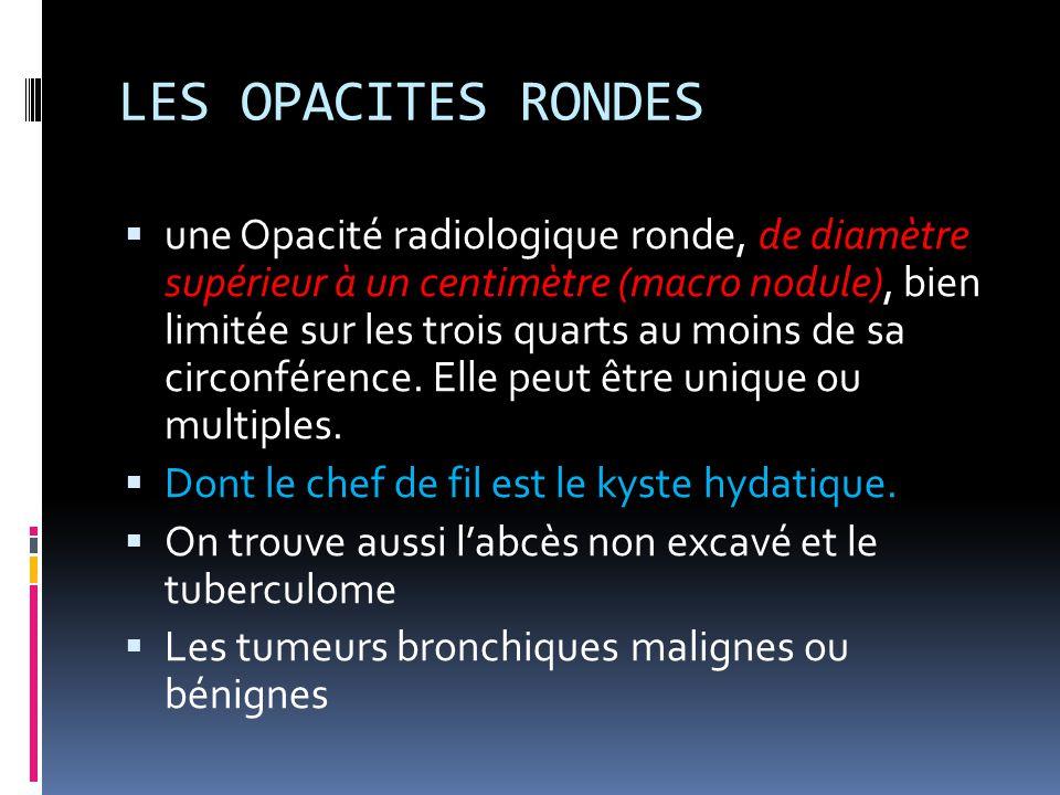 LES OPACITES RONDES  une Opacité radiologique ronde, de diamètre supérieur à un centimètre (macro nodule), bien limitée sur les trois quarts au moins