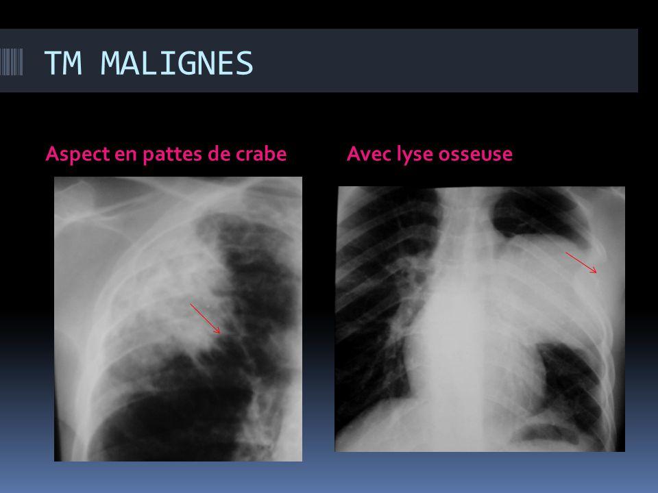 TM MALIGNES Aspect en pattes de crabeAvec lyse osseuse