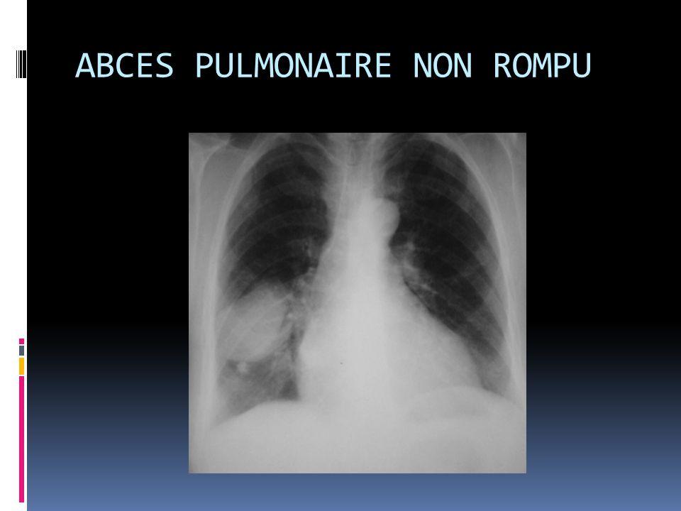 ABCES PULMONAIRE NON ROMPU