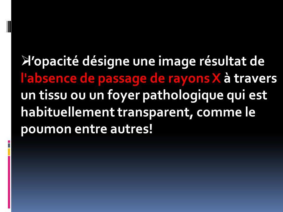  l'opacité désigne une image résultat de l'absence de passage de rayons X à travers un tissu ou un foyer pathologique qui est habituellement transpar