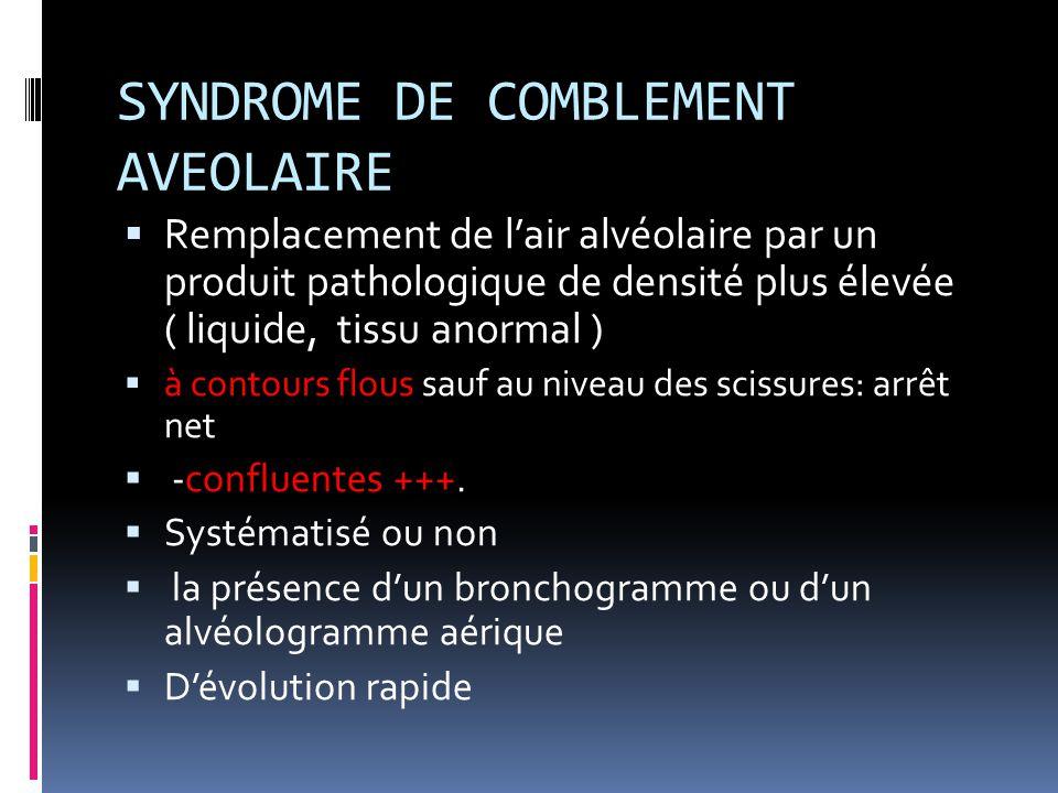 SYNDROME DE COMBLEMENT AVEOLAIRE  Remplacement de l'air alvéolaire par un produit pathologique de densité plus élevée ( liquide, tissu anormal )  à