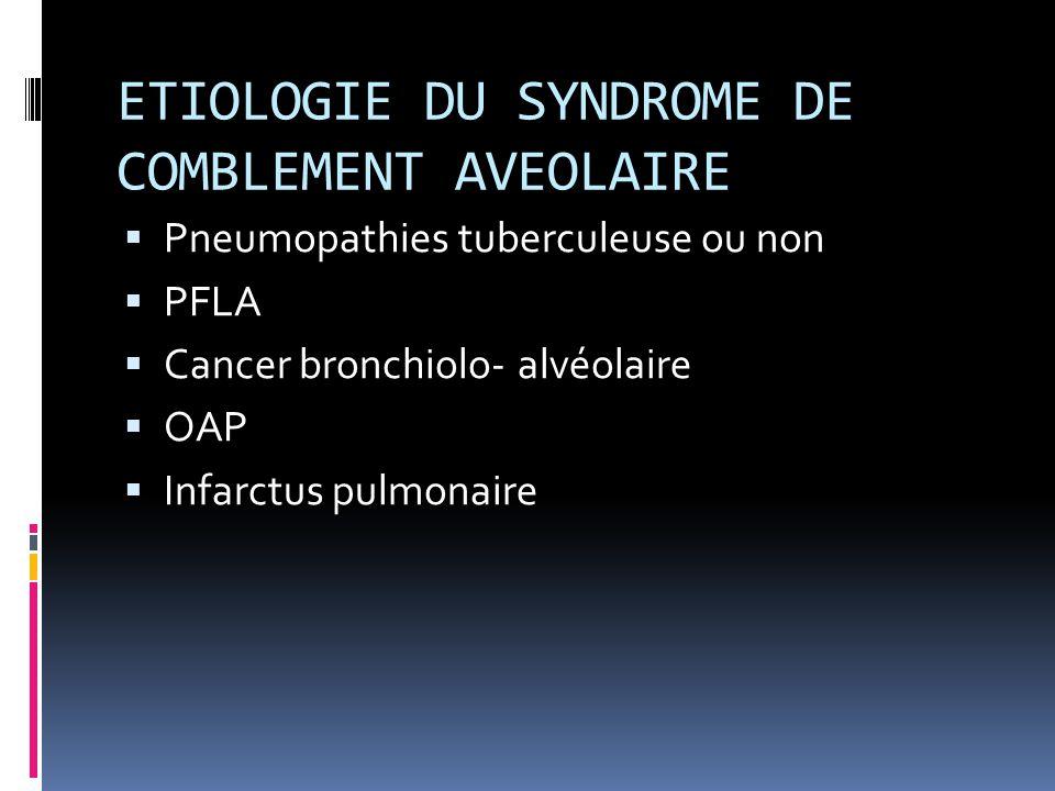 ETIOLOGIE DU SYNDROME DE COMBLEMENT AVEOLAIRE  Pneumopathies tuberculeuse ou non  PFLA  Cancer bronchiolo- alvéolaire  OAP  Infarctus pulmonaire