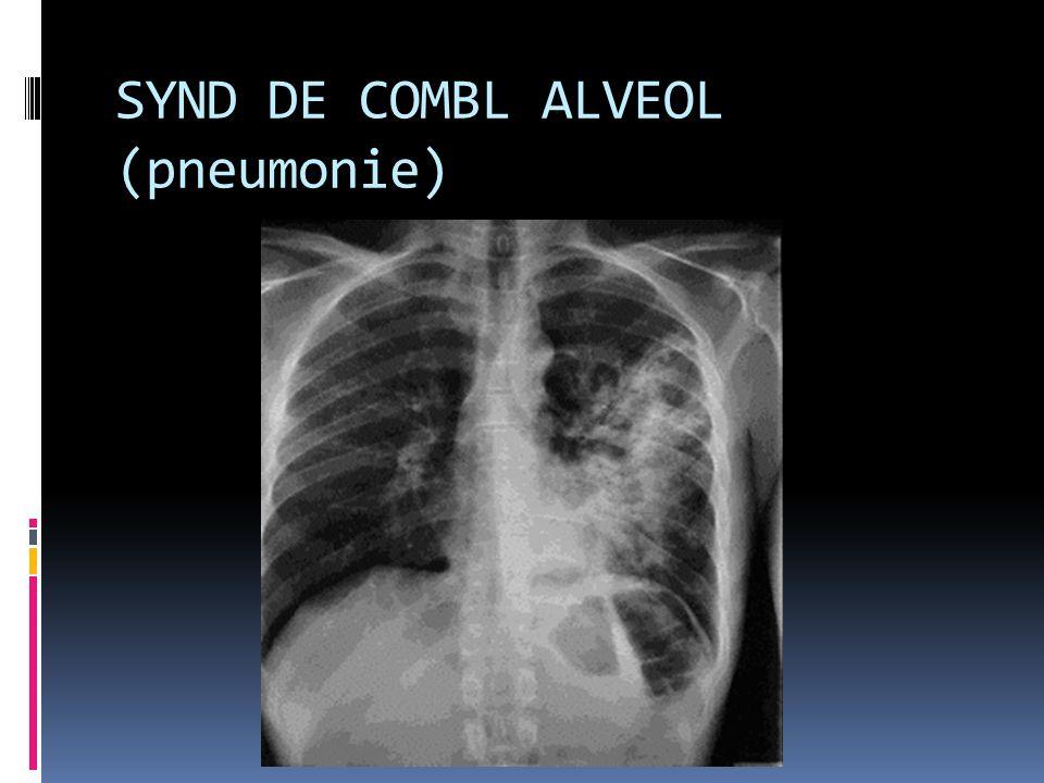 SYND DE COMBL ALVEOL (pneumonie)