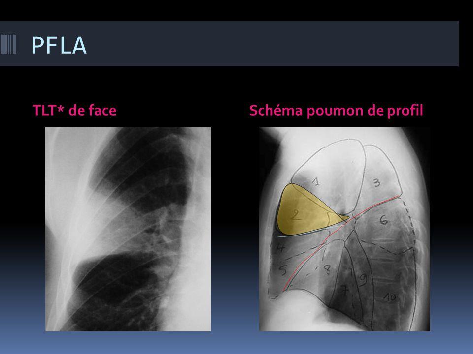 PFLA TLT* de faceSchéma poumon de profil