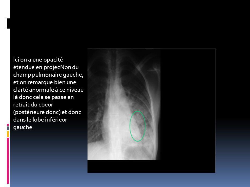 Ici on a une opacité étendue en projecNon du champ pulmonaire gauche, et on remarque bien une clarté anormale à ce niveau là donc cela se passe en ret
