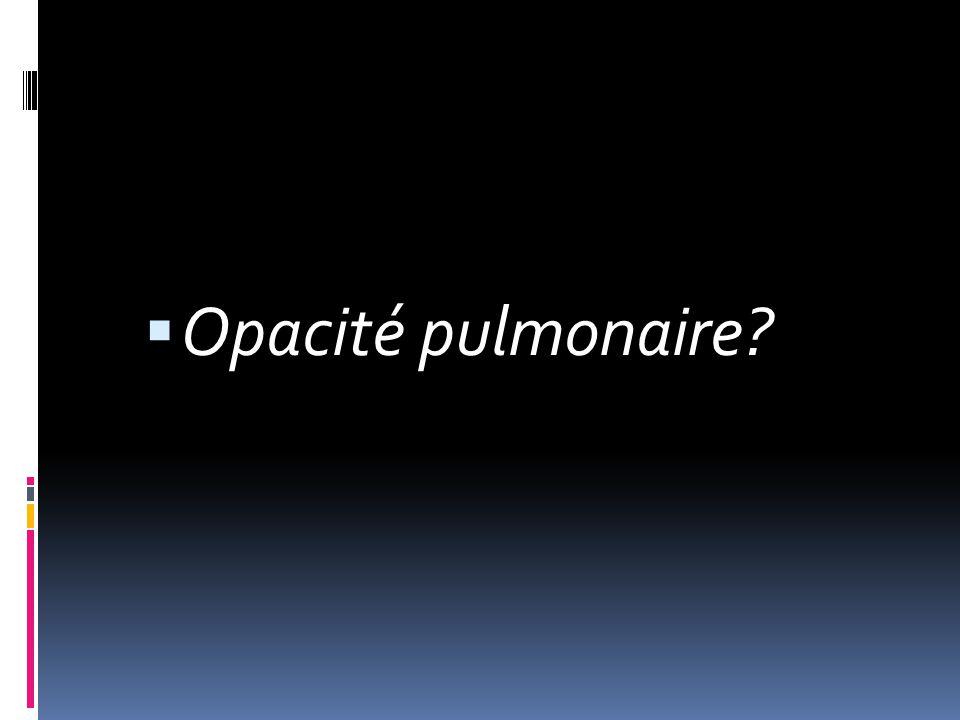  Opacité pulmonaire?