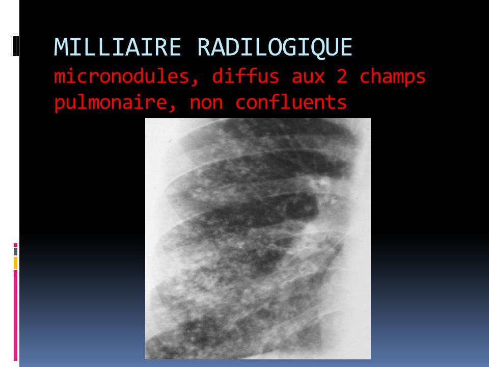 MILLIAIRE RADILOGIQUE micronodules, diffus aux 2 champs pulmonaire, non confluents