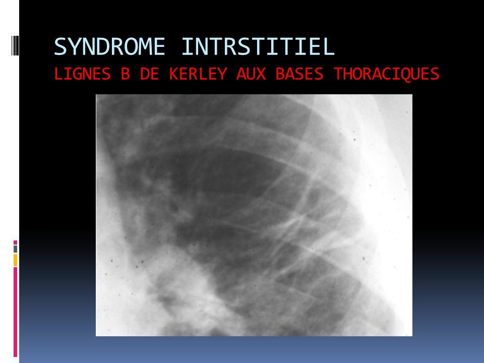 SYNDROME INTRSTITIEL LIGNES B DE KERLEY AUX BASES THORACIQUES