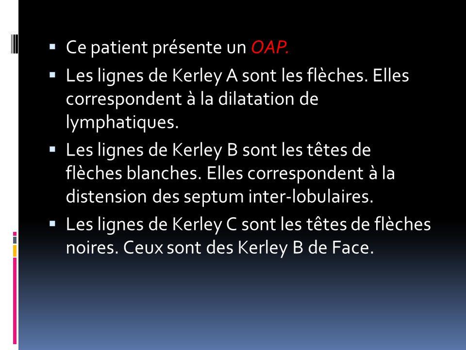  Ce patient présente un OAP.  Les lignes de Kerley A sont les flèches. Elles correspondent à la dilatation de lymphatiques.  Les lignes de Kerley B
