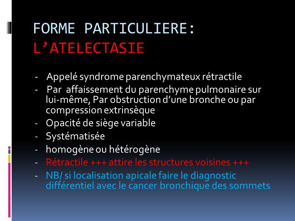 FORME PARTICULIERE: L'ATELECTASIE - Appelé syndrome parenchymateux rétractile - Par affaissement du parenchyme pulmonaire sur lui-même, Par obstructio