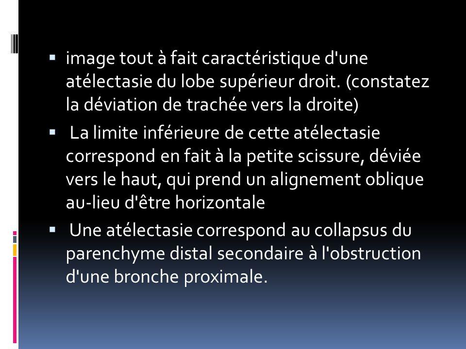  image tout à fait caractéristique d'une atélectasie du lobe supérieur droit. (constatez la déviation de trachée vers la droite)  La limite inférieu