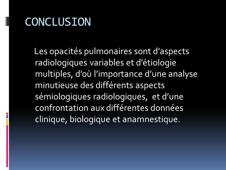CONCLUSION Les opacités pulmonaires sont d'aspects radiologiques variables et d'étiologie multiples, d'où l'importance d'une analyse minutieuse des di