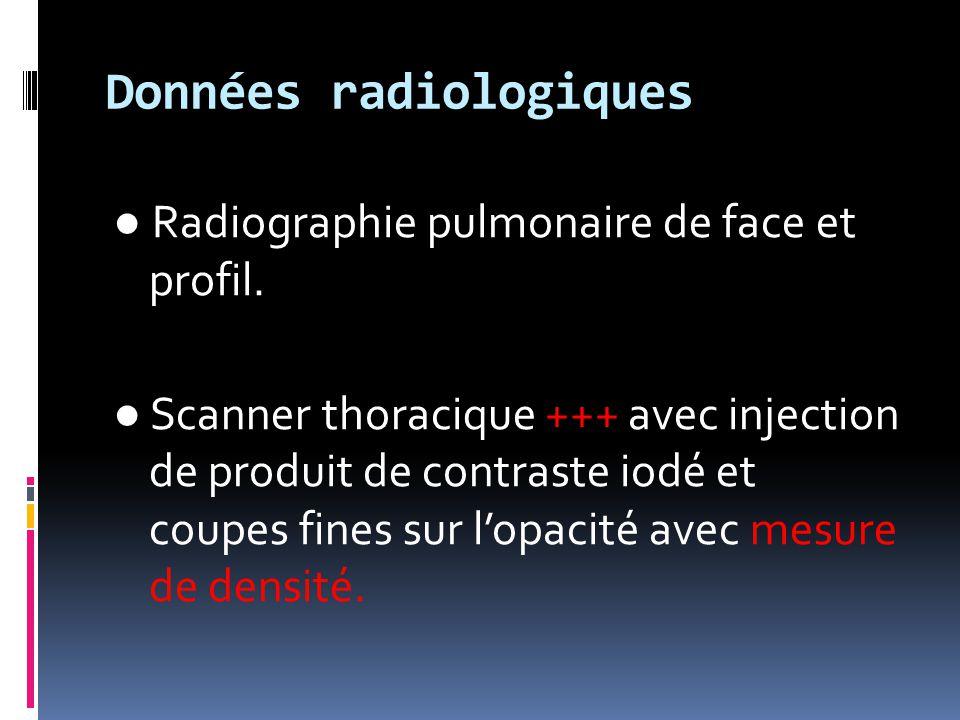 Données radiologiques ● Radiographie pulmonaire de face et profil. ● Scanner thoracique +++ avec injection de produit de contraste iodé et coupes fine