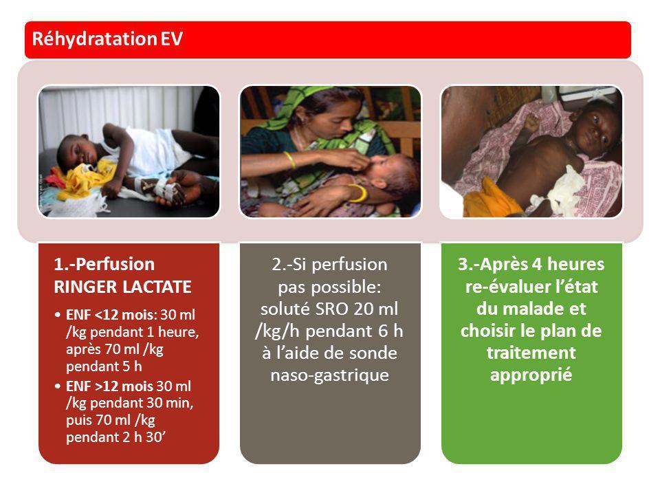 Réhydratation EV 1.-Perfusion RINGER LACTATE ENF <12 mois: 30 ml /kg pendant 1 heure, après 70 ml /kg pendant 5 h ENF >12 mois 30 ml /kg pendant 30 mi