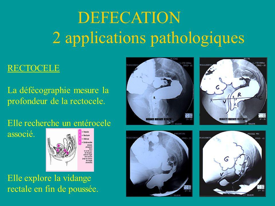 DEFECATION 2 applications pathologiques RECTOCELE La défécographie mesure la profondeur de la rectocele.