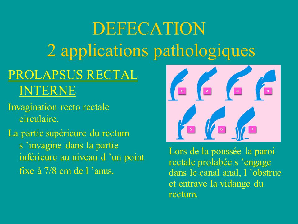 PROLAPSUS RECTAL INTERNE Invagination recto rectale circulaire.