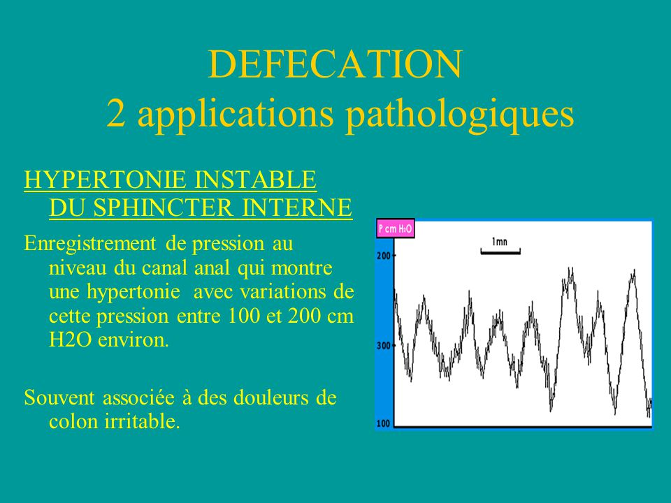 DEFECATION 2 applications pathologiques HYPERTONIE INSTABLE DU SPHINCTER INTERNE Enregistrement de pression au niveau du canal anal qui montre une hyp