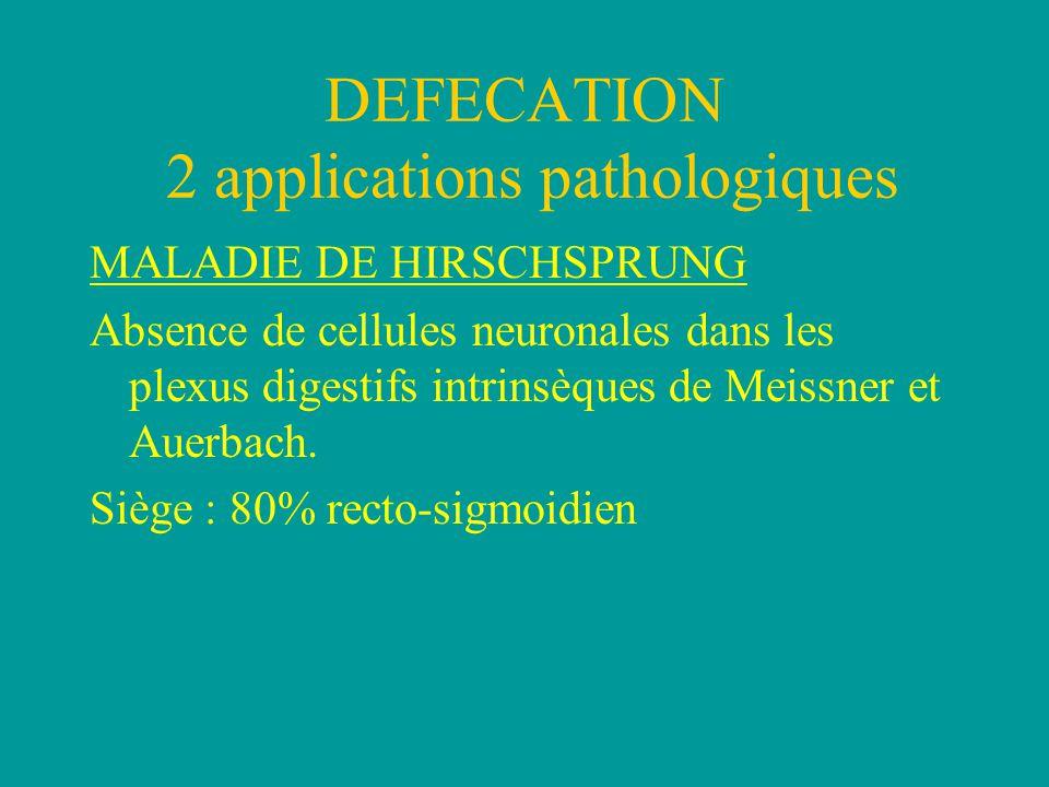 MALADIE DE HIRSCHSPRUNG Absence de cellules neuronales dans les plexus digestifs intrinsèques de Meissner et Auerbach.