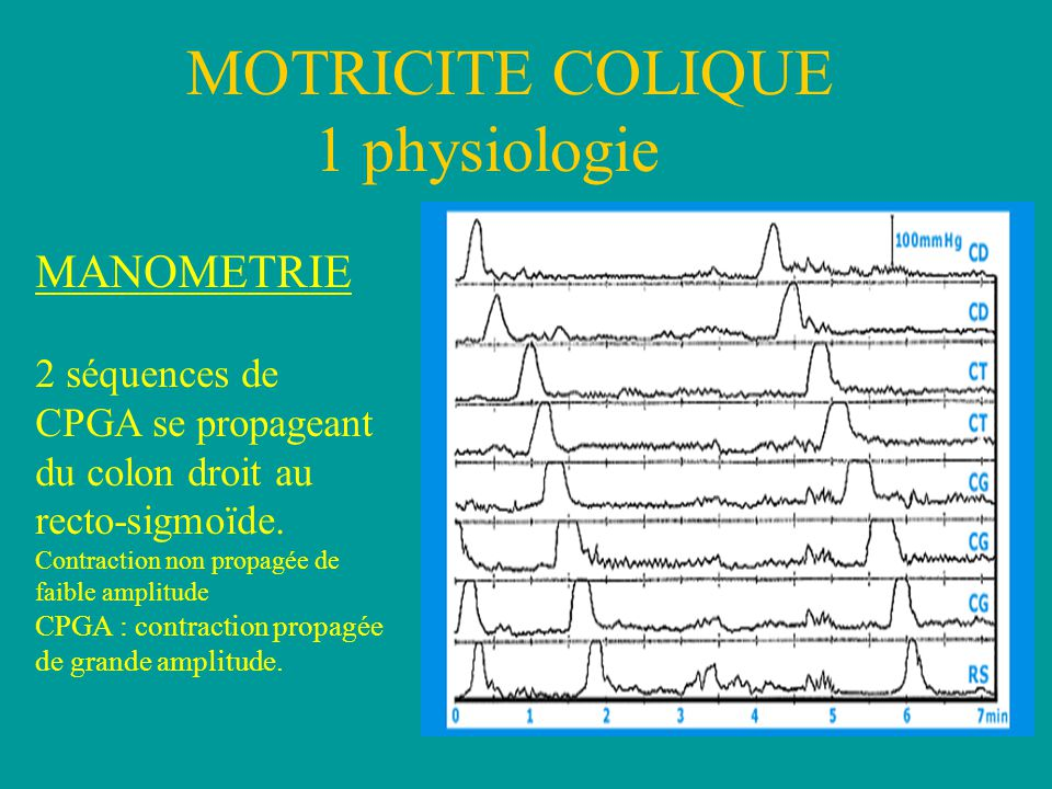 MOTRICITE COLIQUE 1 physiologie MANOMETRIE 2 séquences de CPGA se propageant du colon droit au recto-sigmoïde. Contraction non propagée de faible ampl