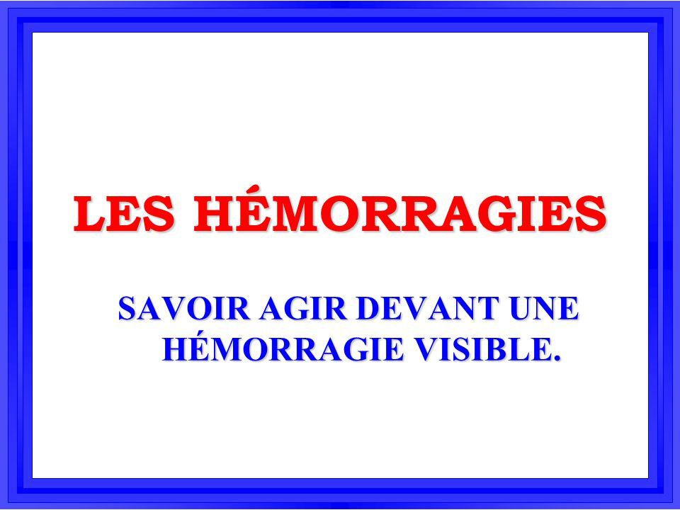 LES HÉMORRAGIES SAVOIR AGIR DEVANT UNE HÉMORRAGIE VISIBLE.