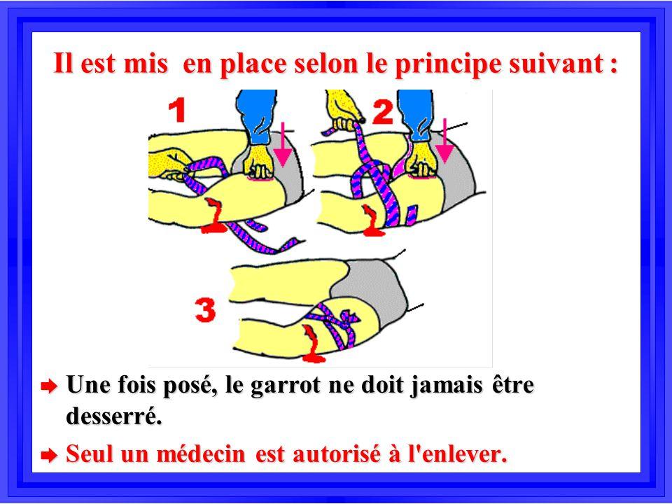 Il est mis en place selon le principe suivant : è Une fois posé, le garrot ne doit jamais être desserré. è Seul un médecin est autorisé à l'enlever.