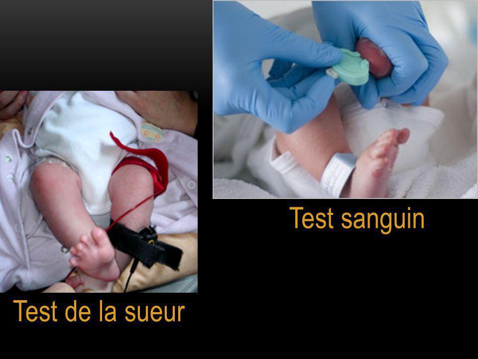 Test sanguin Test de la sueur