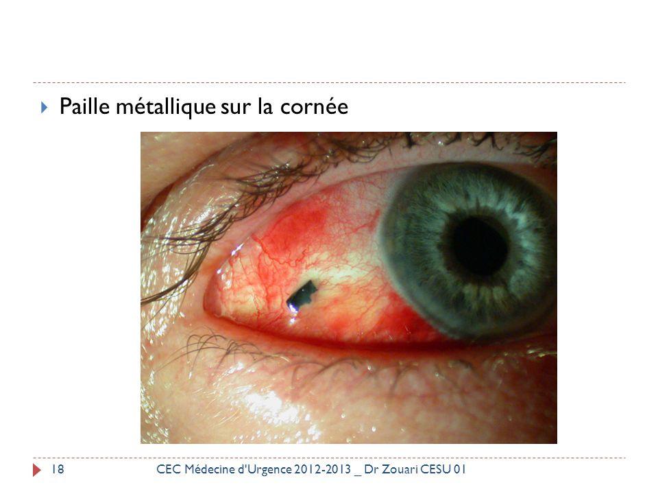  Paille métallique sur la cornée 18CEC Médecine d'Urgence 2012-2013 _ Dr Zouari CESU 01
