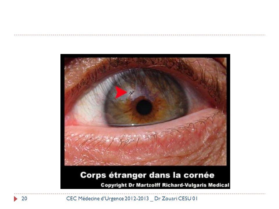 20CEC Médecine d'Urgence 2012-2013 _ Dr Zouari CESU 01